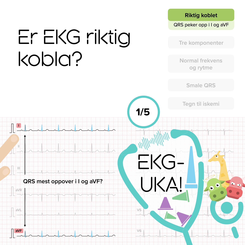 01 Er EKG riktig kobla?
