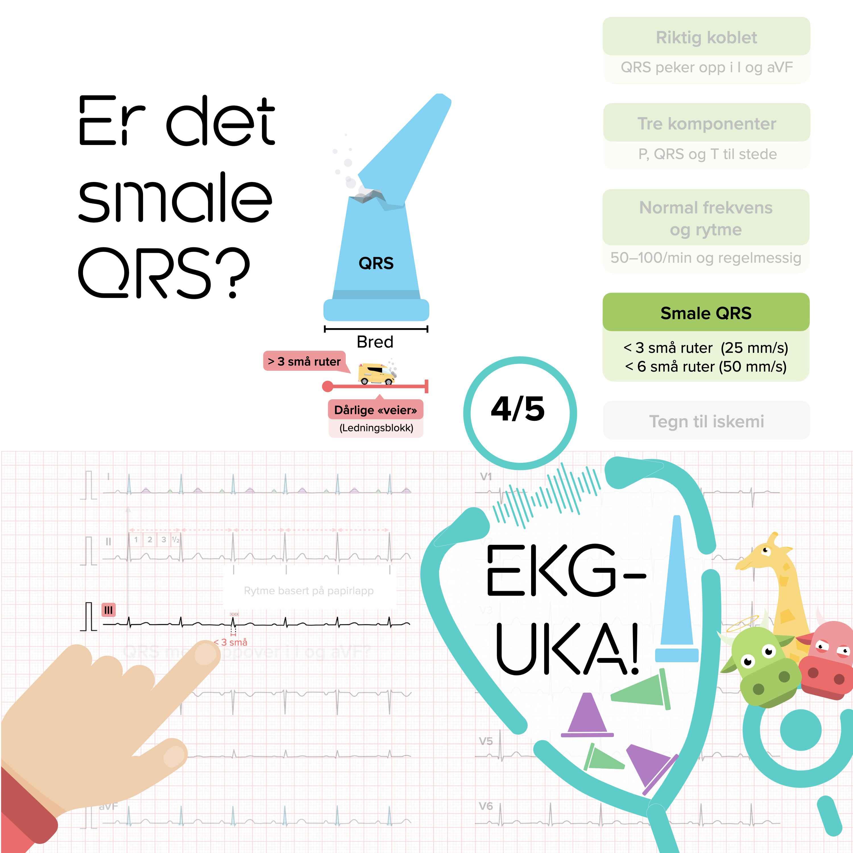 04 Er det smale QRS?