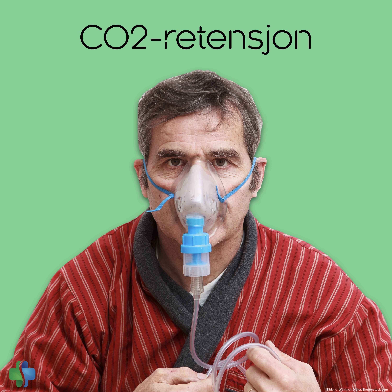 CO2-retensjon